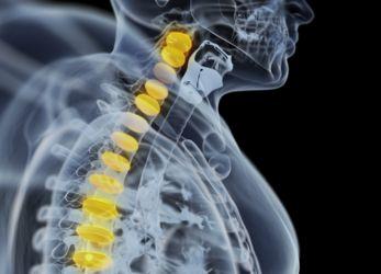 Eficacia de Cirugía en la Espalda