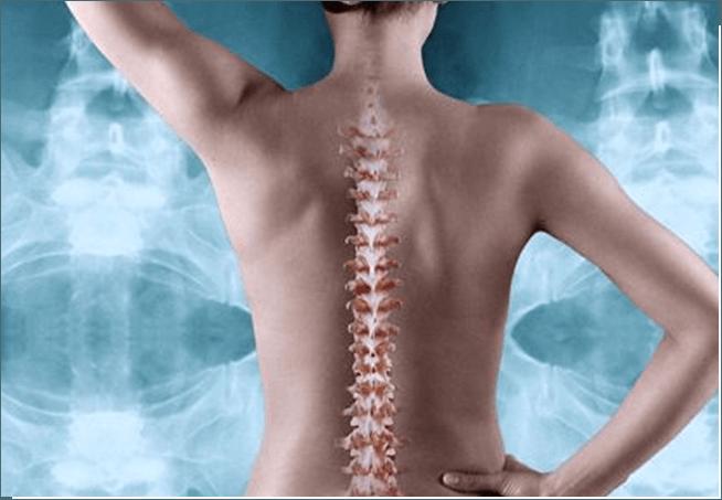 Artrosis proceso de degeneración espinal