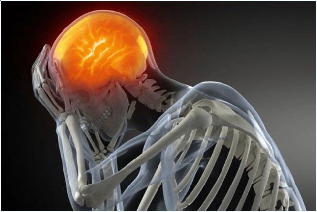 dolor de cabeza Granollers