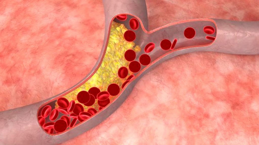 Colesterol clinica Mayo