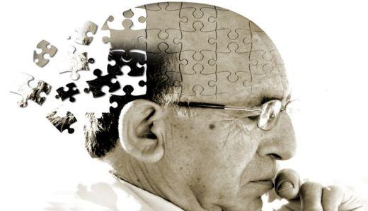 Alzheimer o Demencia